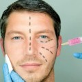 4 cirugías masculinas para ser un metrosexual o similar