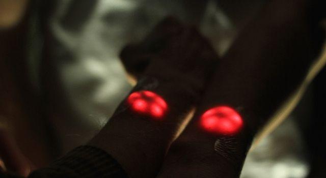 implantes de luces LED-02